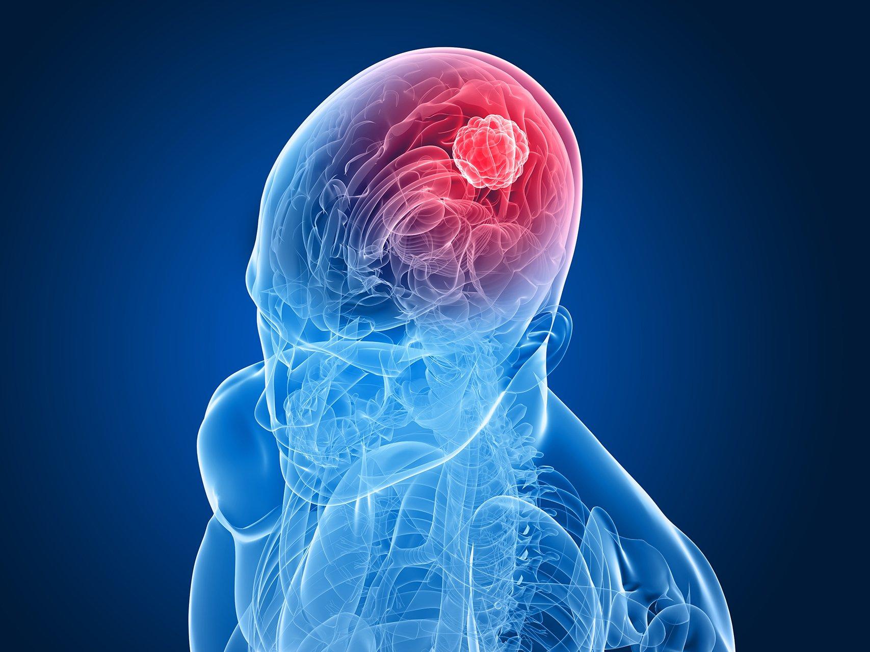 cannabis e cancro al cervello