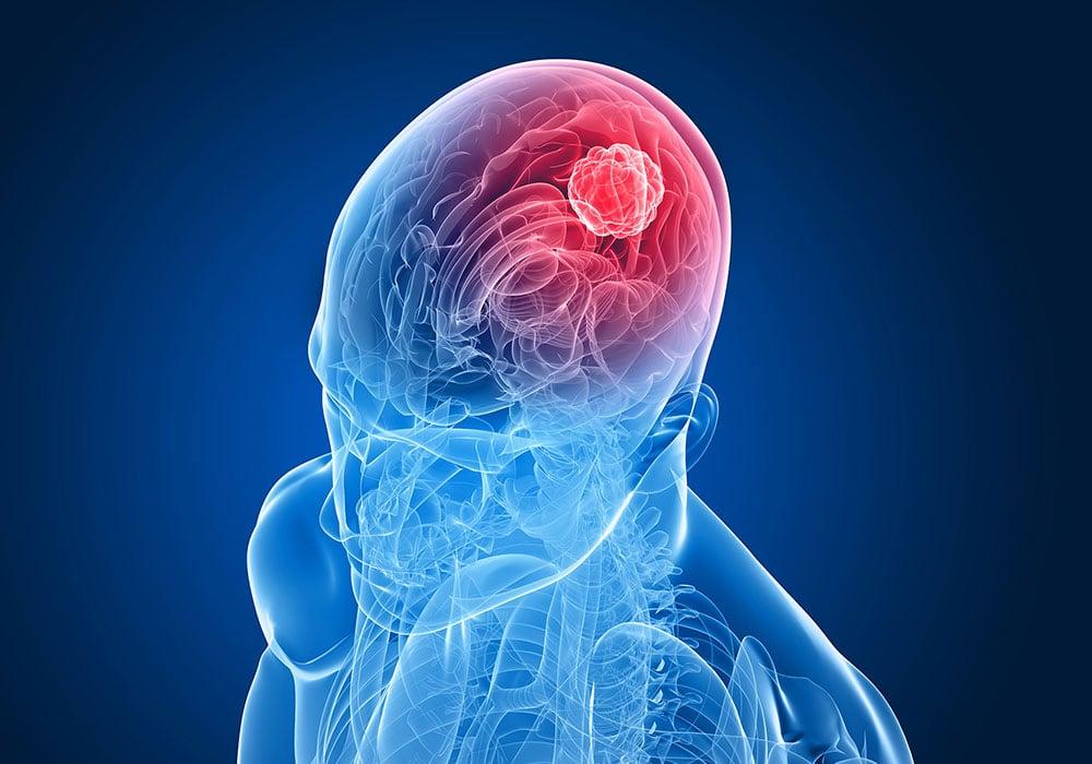 CBD e interazione con il sistema nervoso centrale